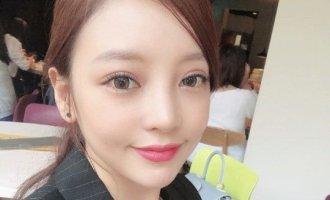 구하라, 안검하수 수술 고백 후 근황 공개…더욱 또렷해진 눈매