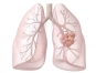 [건강을 읽다]'날숨'만으로 폐암 검사하는 시대 온다
