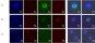 [건강을 읽다]소량의 혈액으로 난소암 판별한다