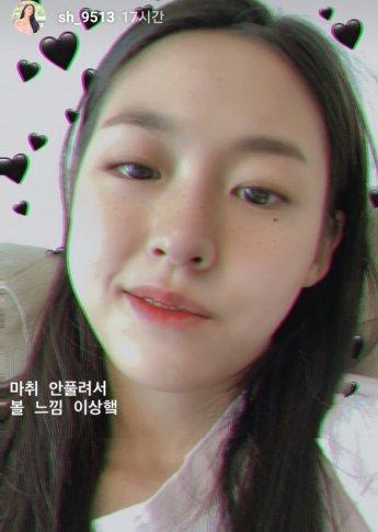 """""""사랑니 두 개 발치"""" 설현, SNS에 인증샷 공개"""