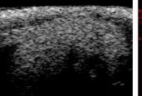 초음파로 미세혈관까지 본다.. 최대 5배 뚜렷해져