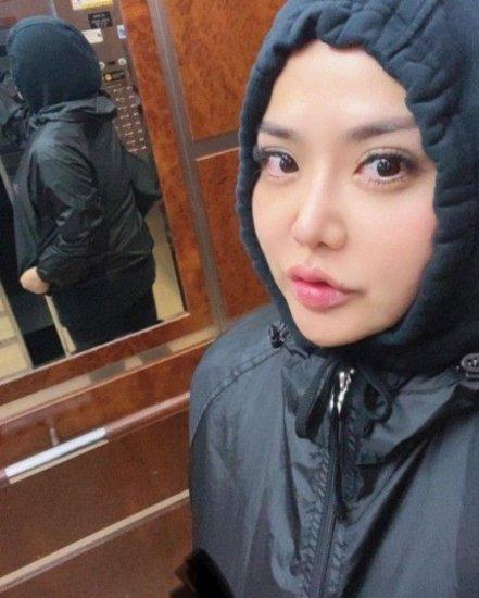 22㎏ 감량 후 '볼이 홀쭉'
