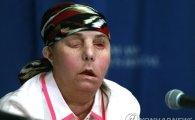 전남편 폭력에 얼굴 잃은 美여성, 2번째 수술서 안면이식 성공
